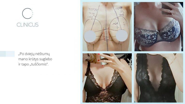 """""""Clinicus"""" plastikos chirurgas dr. Dainius Daunoravičius rekomendavo pacientei 355 ml tūrio """"Motiva"""" impantus ir moteris nepasigailėjo."""