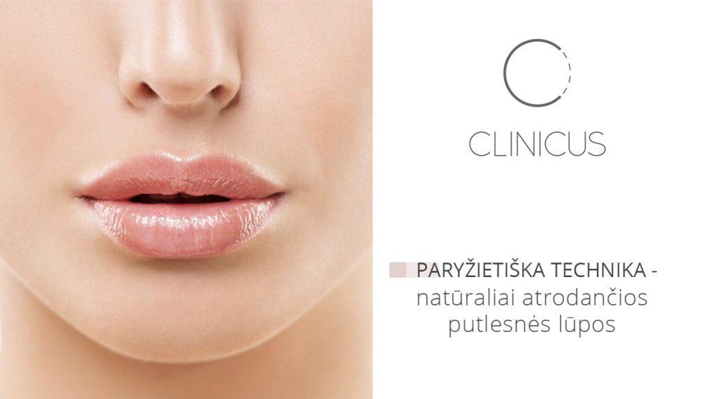 Lūpų putlinimas injekcijomis Clinicus