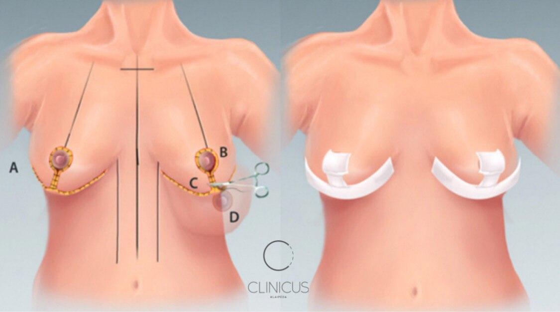 Krūtinės mažinimas operacija