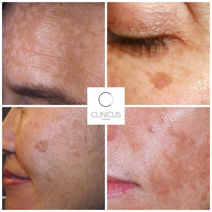 Odos pigmentacija, pigmetinės dėmės