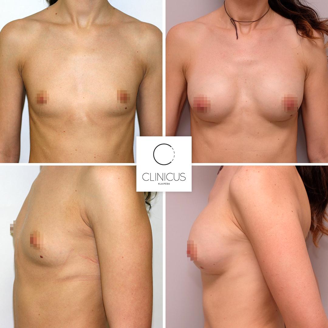 Krūtų implantai praėjus 11 metų po operacijos
