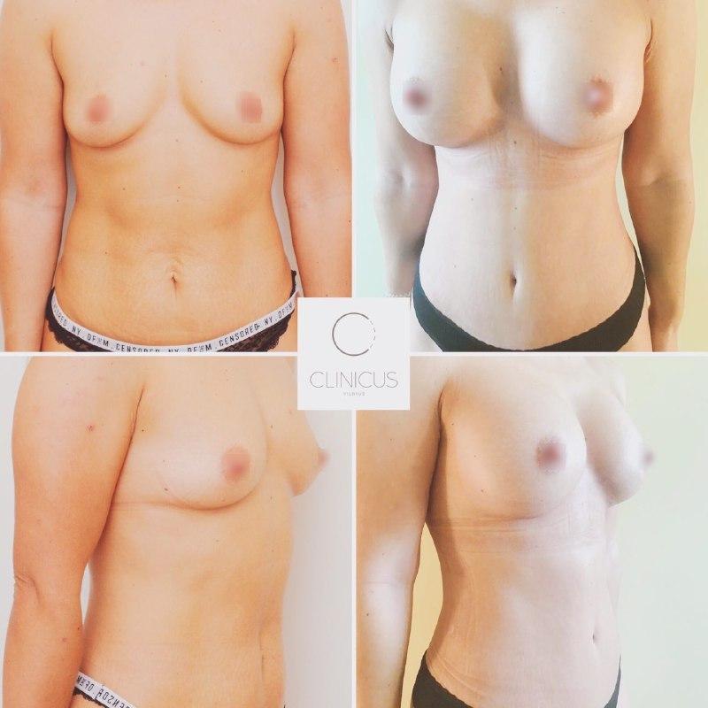 Krūtų ir pilvo korekcija