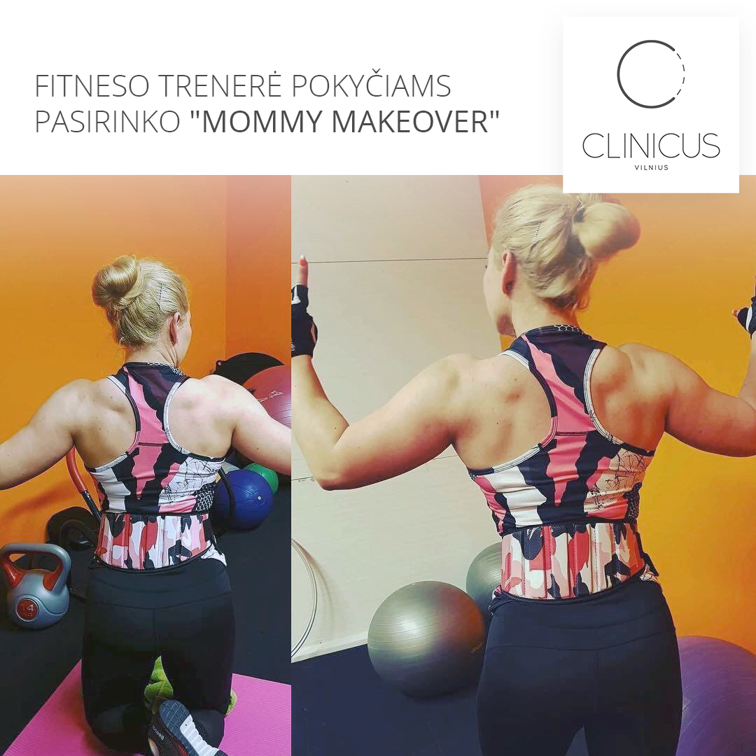 Mommy Makeover operacija