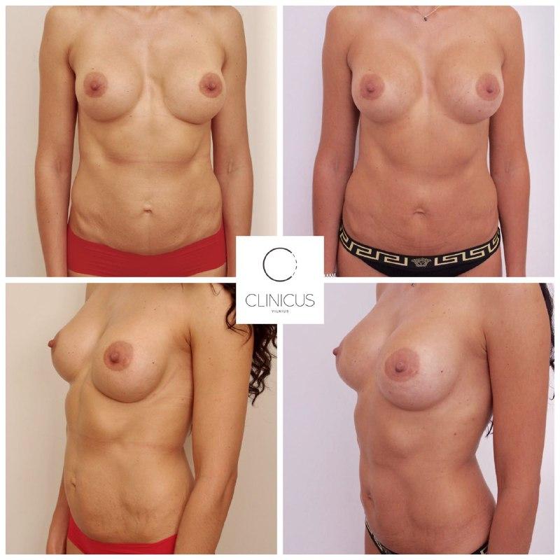 Krūtų implantų keitimas su garantija
