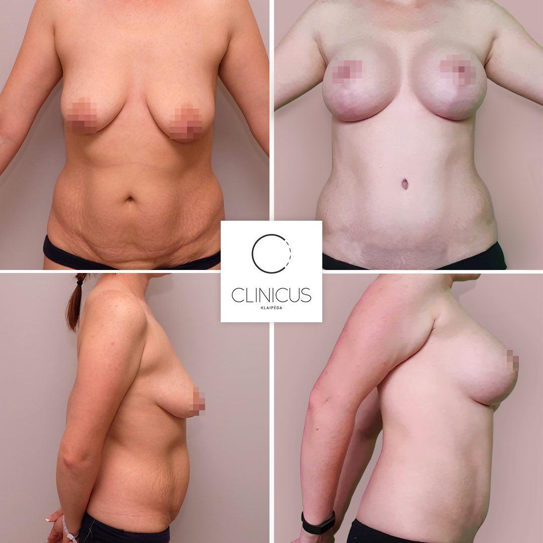 Krūtų korekcija ir pilvo plastika