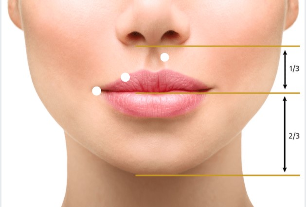 lūpos korekcija lip lift