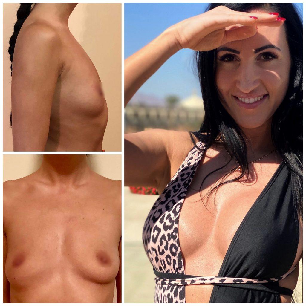 Krūtinės didinimas implantais su vidiniu pakėlimu