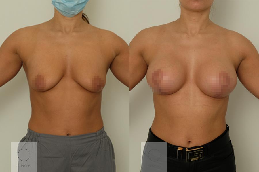 Krutu-operacijos